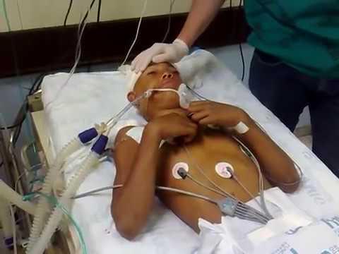 Brain Death - Rare complex spinal reflex - Lazarus sign